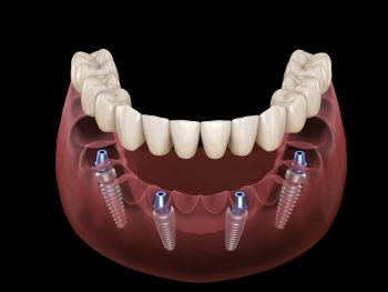 All-on-4 Fixed Implant Prosthesis