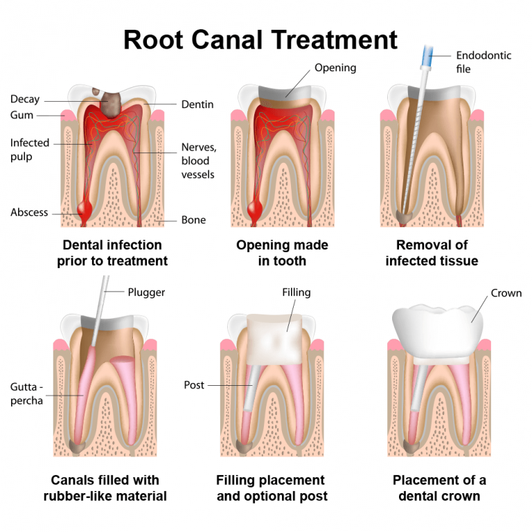 Best dentist peabody MA northshore best dentist near me cheap dentistry cheap implant cheap crown filling denture masshealth delta dental root canal toothache
